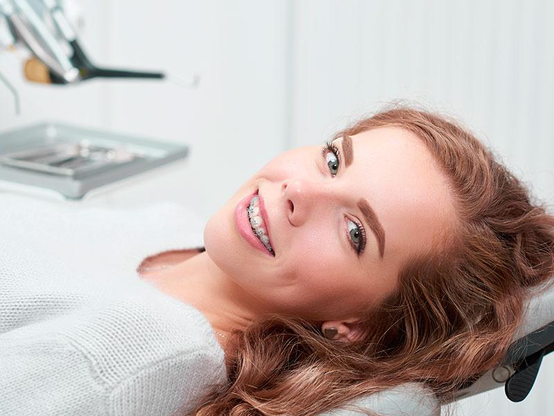 Brackets - Tipos de Brackets - Clínica Dental Acacias