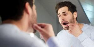 liquen plano síntomas y causas