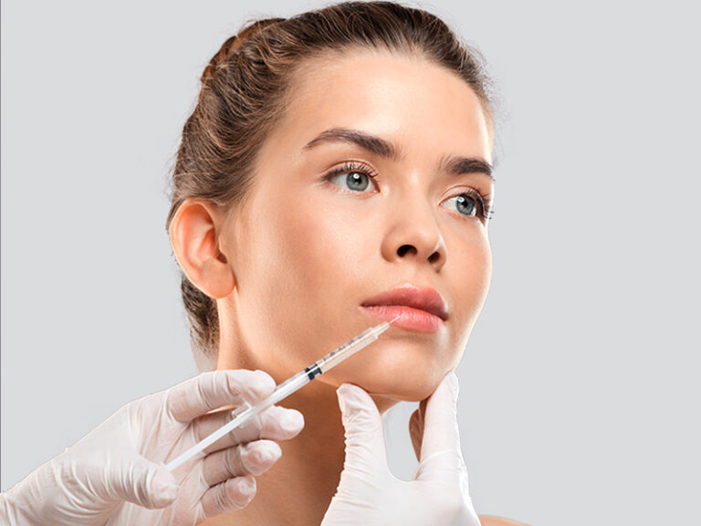 Relleno facial - Rellenos faciales