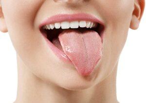 Trastornos de la lengua y su afección en las papilas gustativas - Clínica Acacias