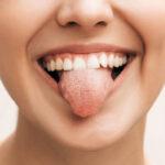Leucoplasia: aprende todo lo necesario